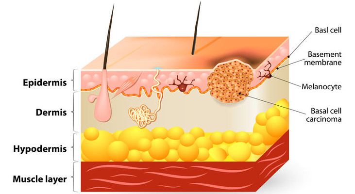 terapia-tumori-cutanei-non-melanocitari