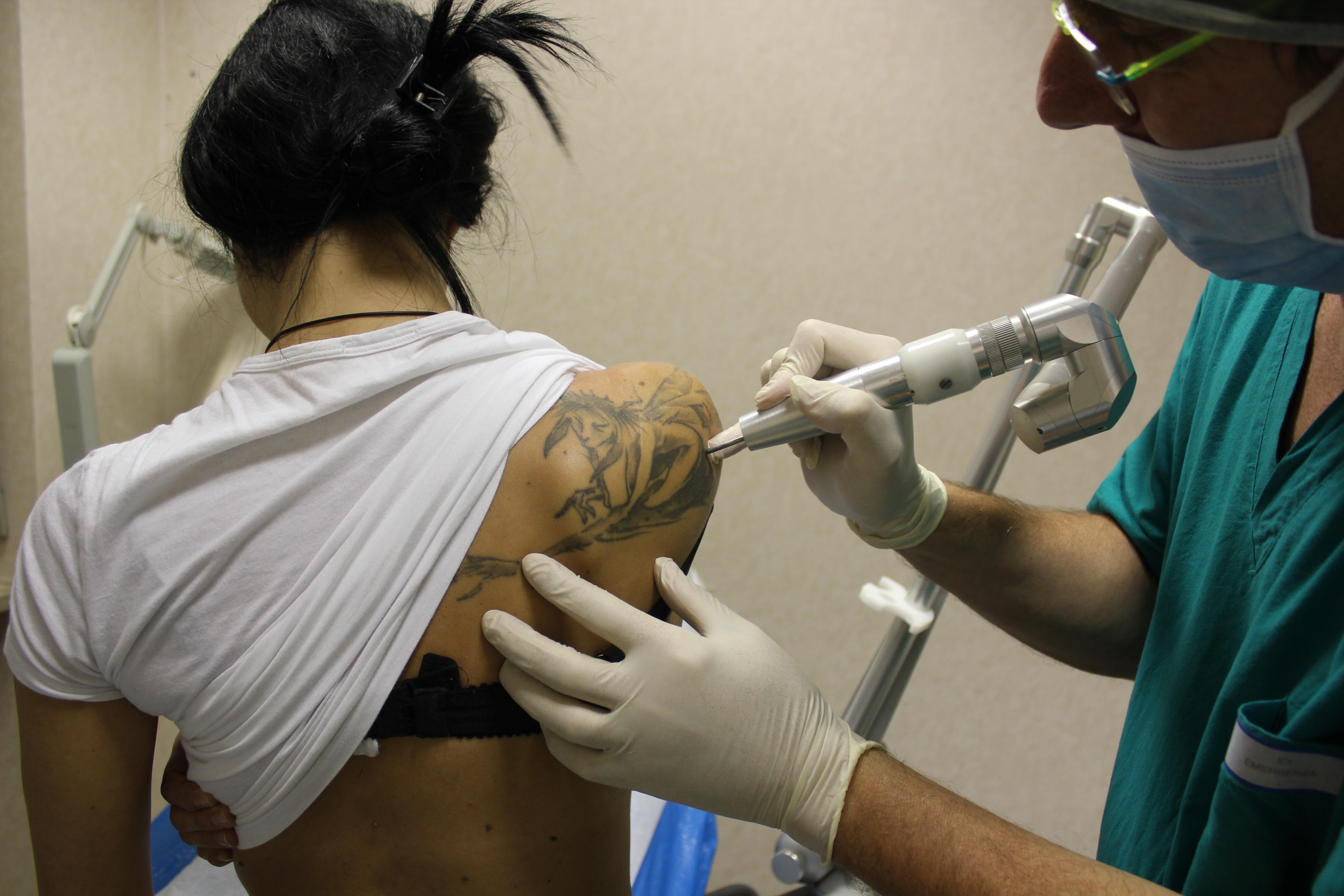 la rimozione tatuaggi con il laser