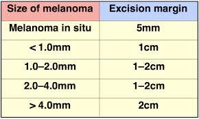 margini escissione melanoma