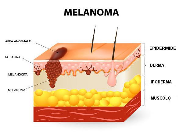 chirurgia del melanoma