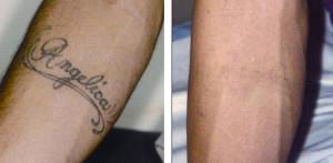 la rimozione dei tatuaggi con il laser