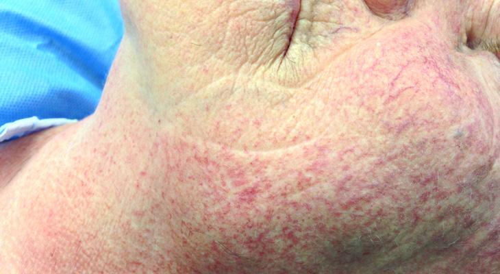 come rimuovere capillari
