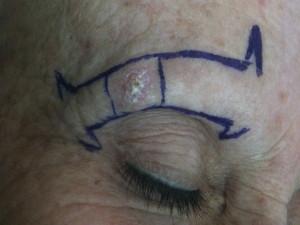 Terapia dei tumori cutanei non melanocitari