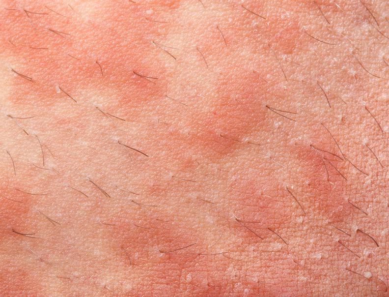 Atopitchesky la dermatite de la photo aux enfants